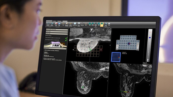 Advanced breast image analysis